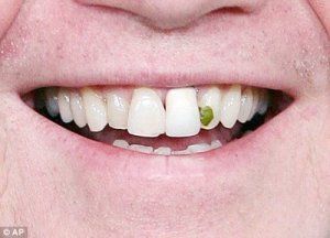 broccoli_in_teeth